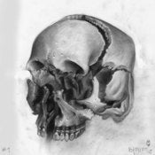 Image of Exploded skull study 1