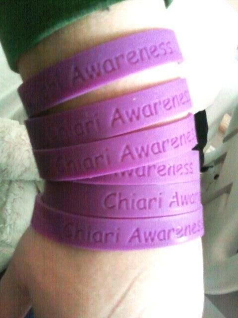 chiari bracelets | just b.CAUSE