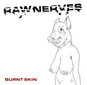 Image of Raw Nerves - Burnt Skin EP
