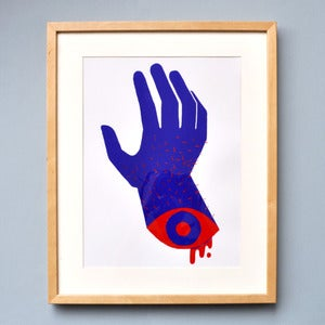 Image of Severed Hand
